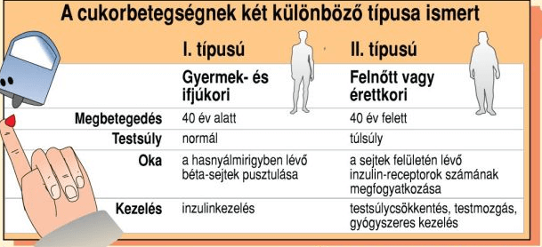 a cukorbetegség fajtáinak bemutatása táblázatban