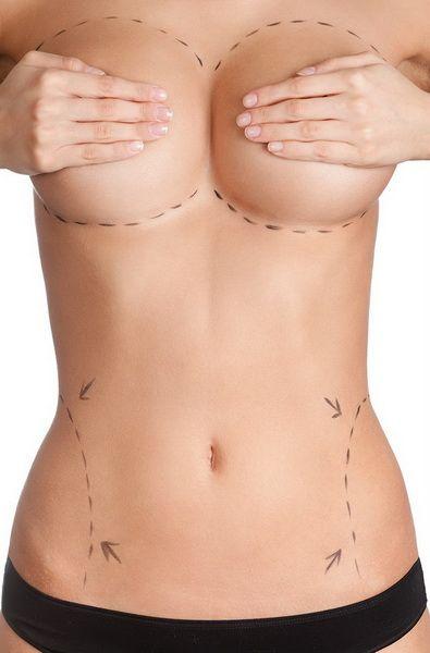 TB támogatás plasztikai műtétre