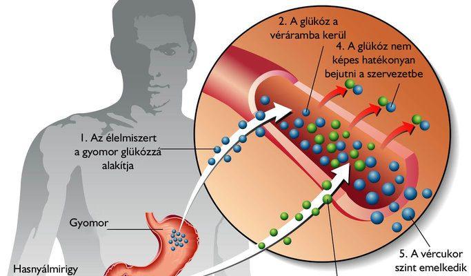 Mit jelent a nem inzulin dependens cukorbetegség?