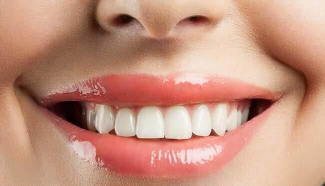 A fogkő eltávolítással megőrizheti fogai egészségét!